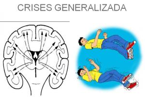 crise generalizada_epilepsia